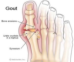 gout diagram | gout | Pinterest | Acid fast, News health