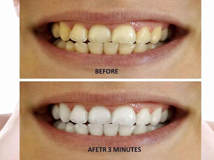 How to whiten teeth at home naturally teeth whitening