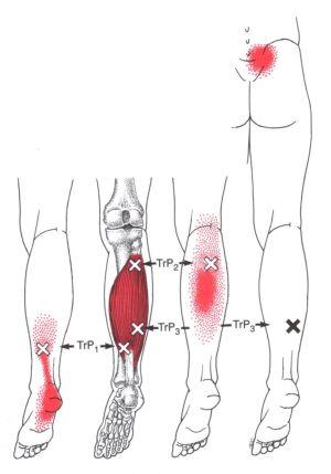 17 Best ideas about Heel Pain on Pinterest | Plantar fasciitis taping, Plantar fasciitis