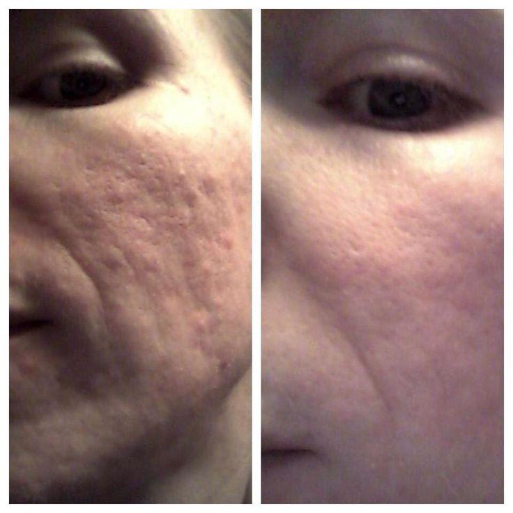 Ad Beauty Cream Face Fresh
