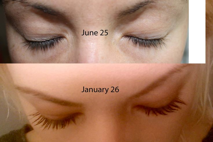 7 months since the day i started using careprost latisse