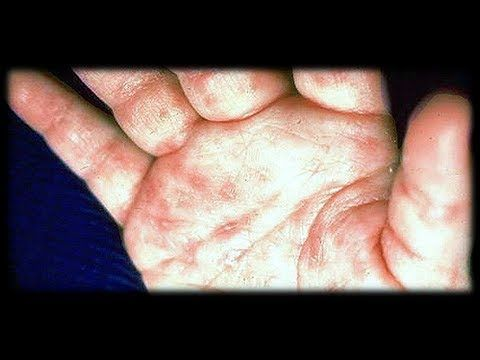 Treatment For Scabies Causes Of Scabies Scabies Rash