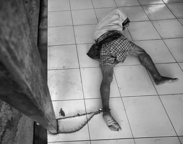 A mental hospital in Indonesia shackles the patients that