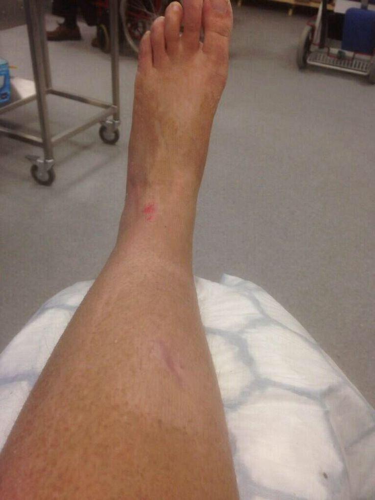 Brokensprain foot sprainbroken anklebroken foot