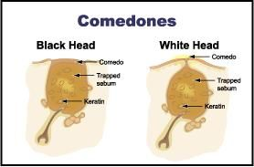 what are comedones