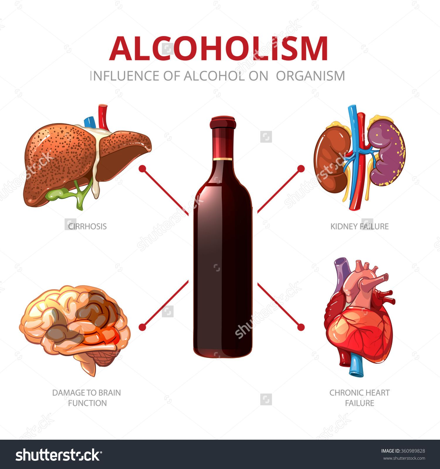Drinking Alcohol Can Affect Your Kidneys Expert
