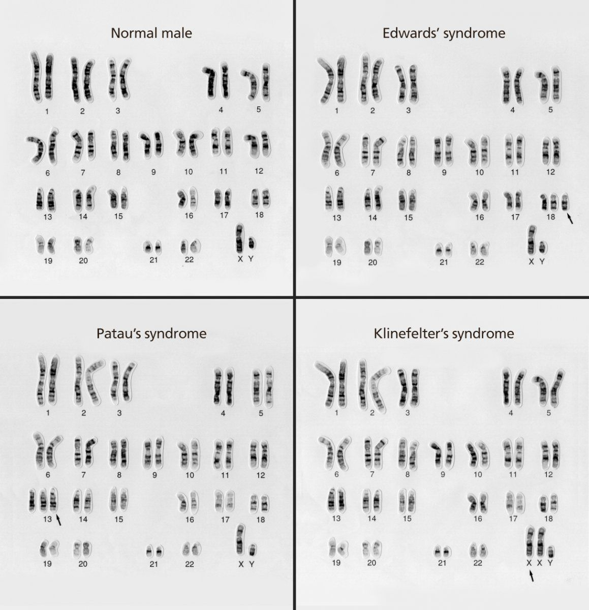 A Karyotype Is The Number And Appearance Of An Organism S Chromosomes These Karyotypes Compare