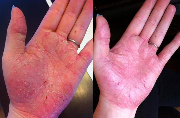 If you have psoriasis you have to try this. Improvement ...