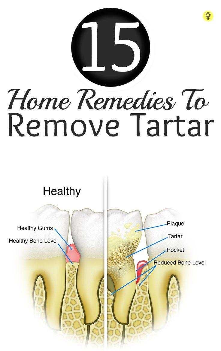 how to get rid of black gums on teeth