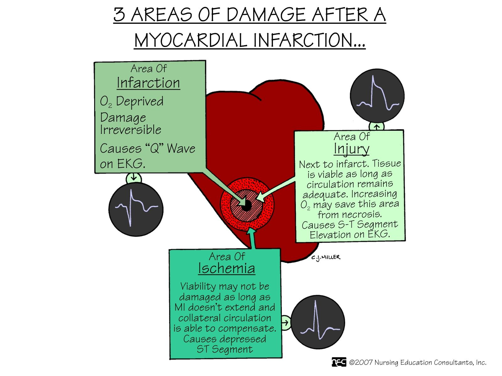 3+Areas+of+Damage+After+A+Myocardial+Infarction.jpg 1,600
