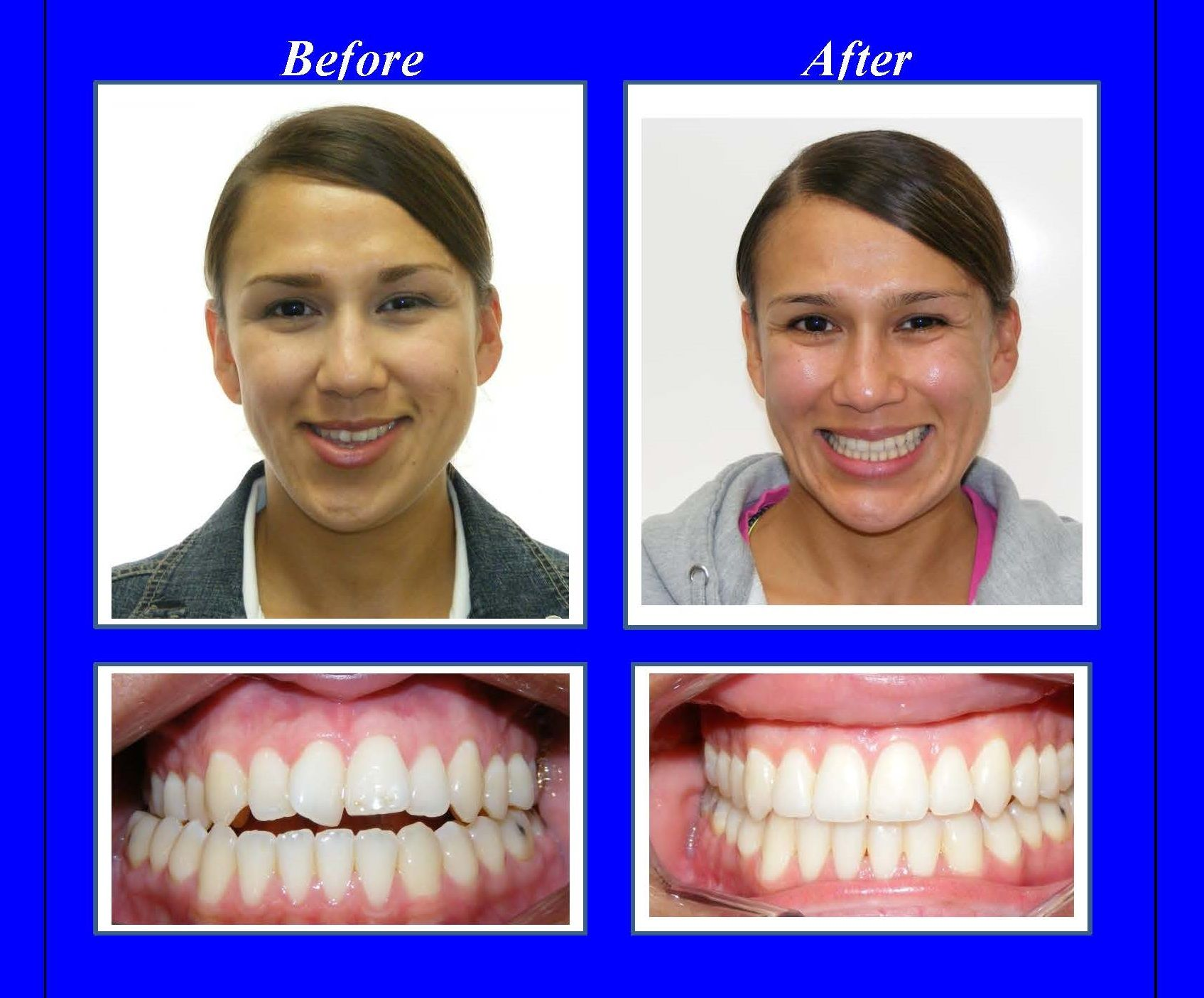 This woman had a severe malocclusion with a narrow upper