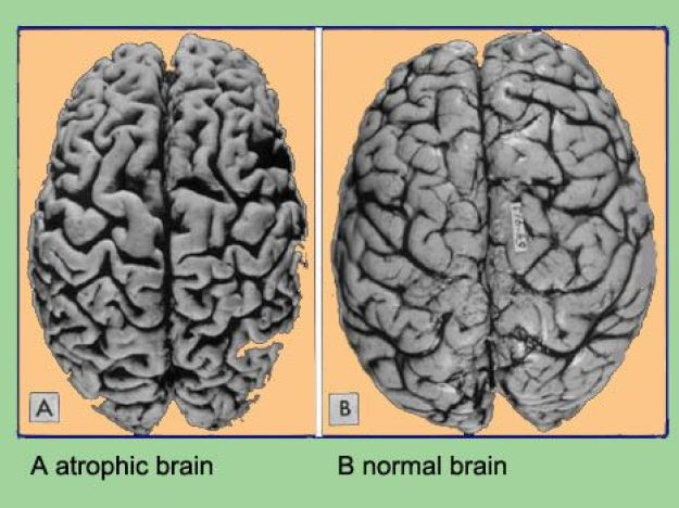 Image result for brain atrophy