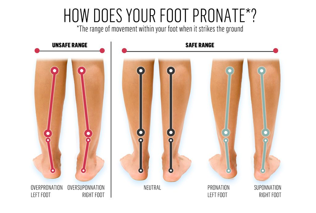 Image result for feet pronation 65 pinterest exercises