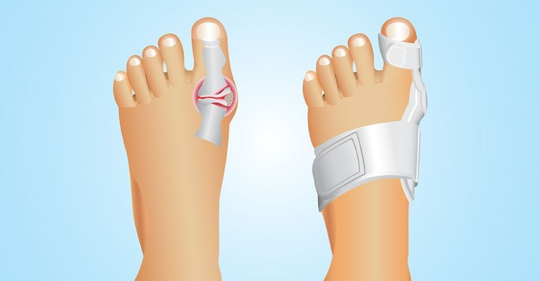 5 tips to relieve bunion pain naturally without surgery