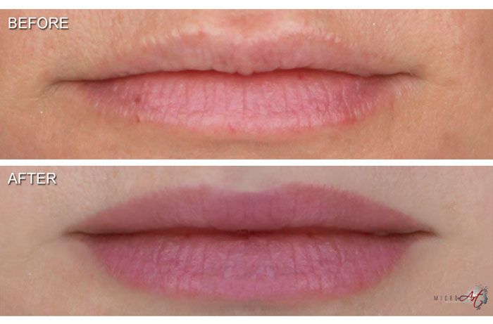 India Low Cost Permanent Makeup For Lips Call Dr White At Carolina Laser Cosmetic Center In