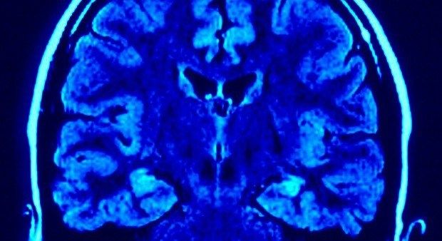 Image result for Fibromyalgia Mystery Finally Solved! Researchers Find Main Source of Pain in Blood Vessels