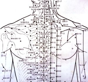 The most awesome images on the Inter | Acupuncture