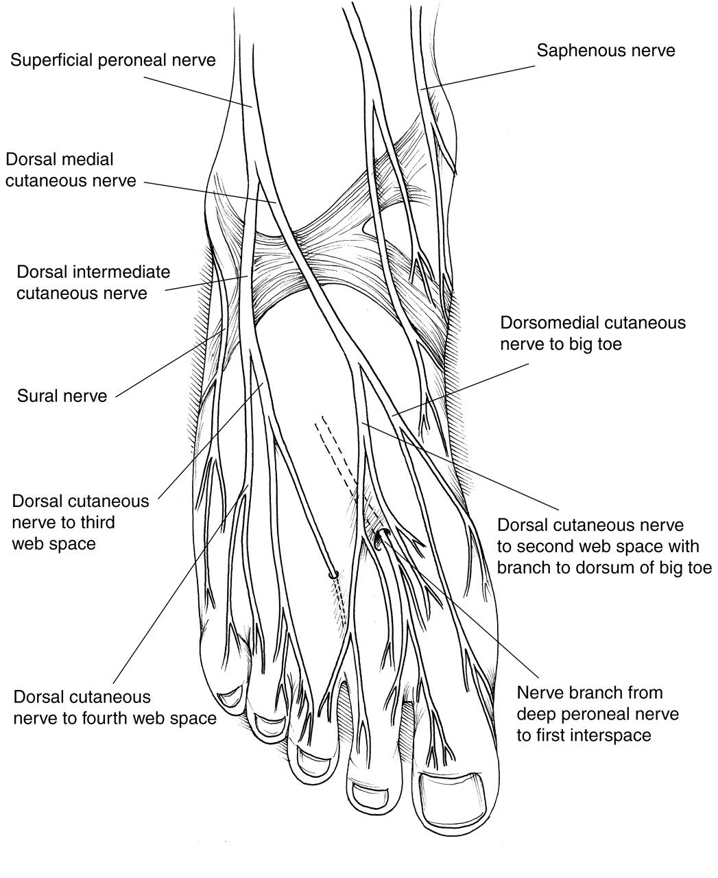 Diagram Of The Foot Pain
