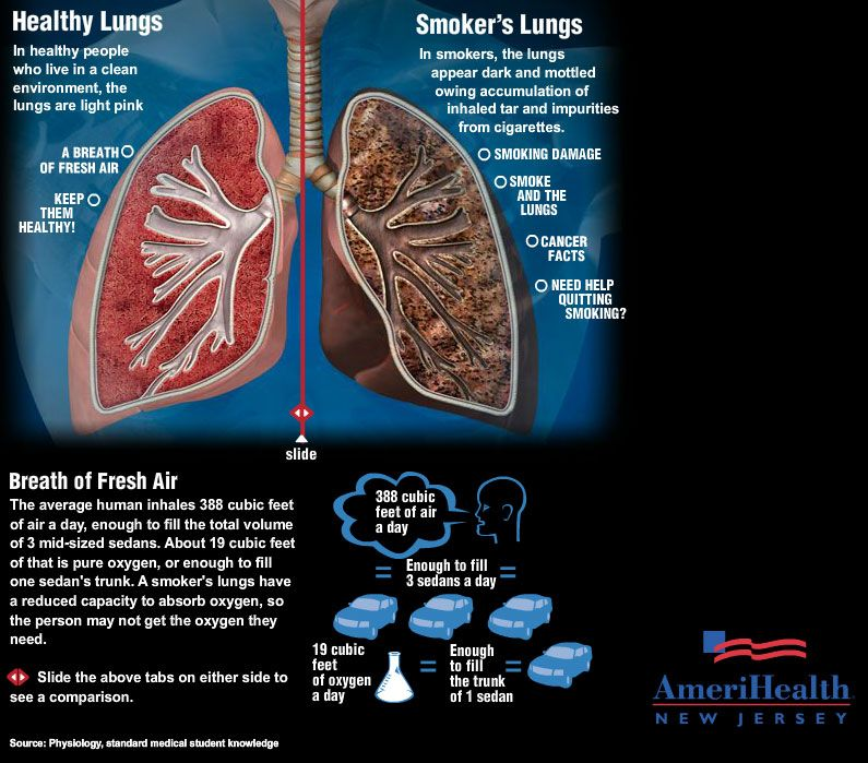 smokers lungs vs. healthy lungs infographic 2305
