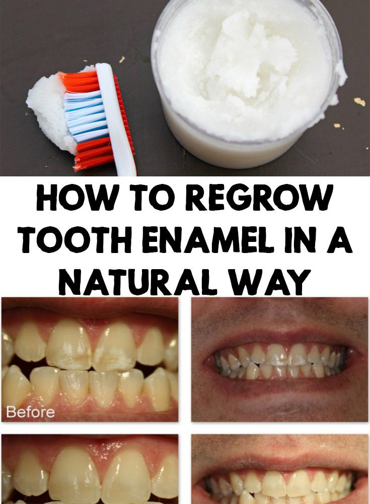 How to regrow tooth enamel in a natural way tooth enamel