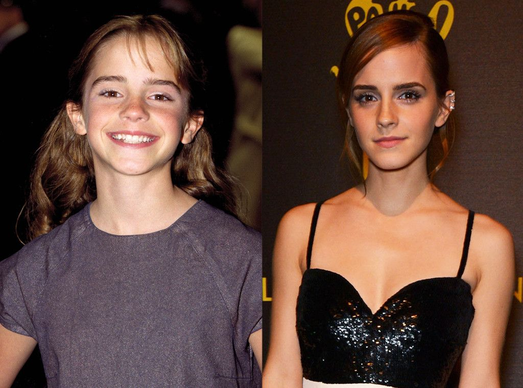 Emma Watson from Child Stars Who Turned Out All Right