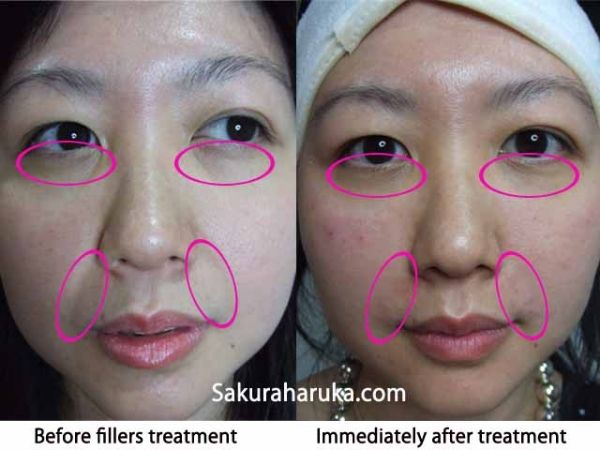 Bags under eyes hemorrhoid cream