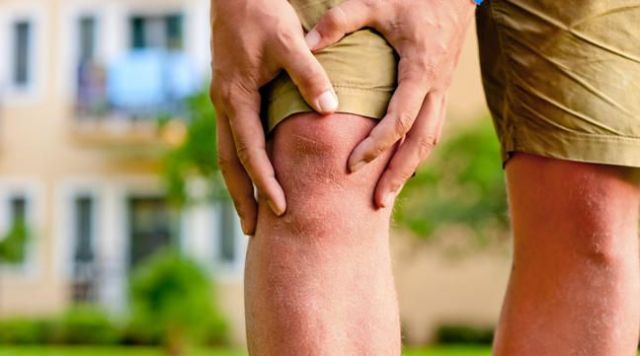 Kết quả hình ảnh cho Cure Arthritis and Joint Pain By These Home Remedies
