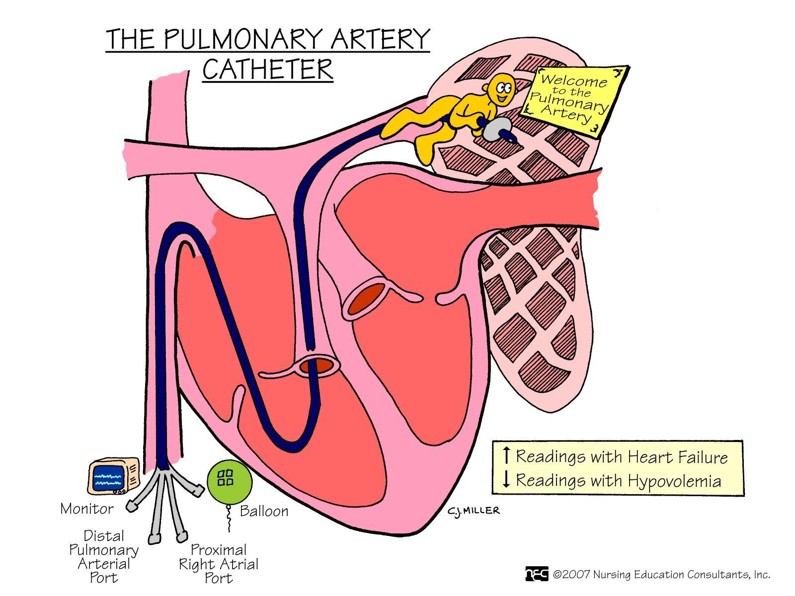Pulmonary Artery Catheter A pulmonary artery catheter (PAC