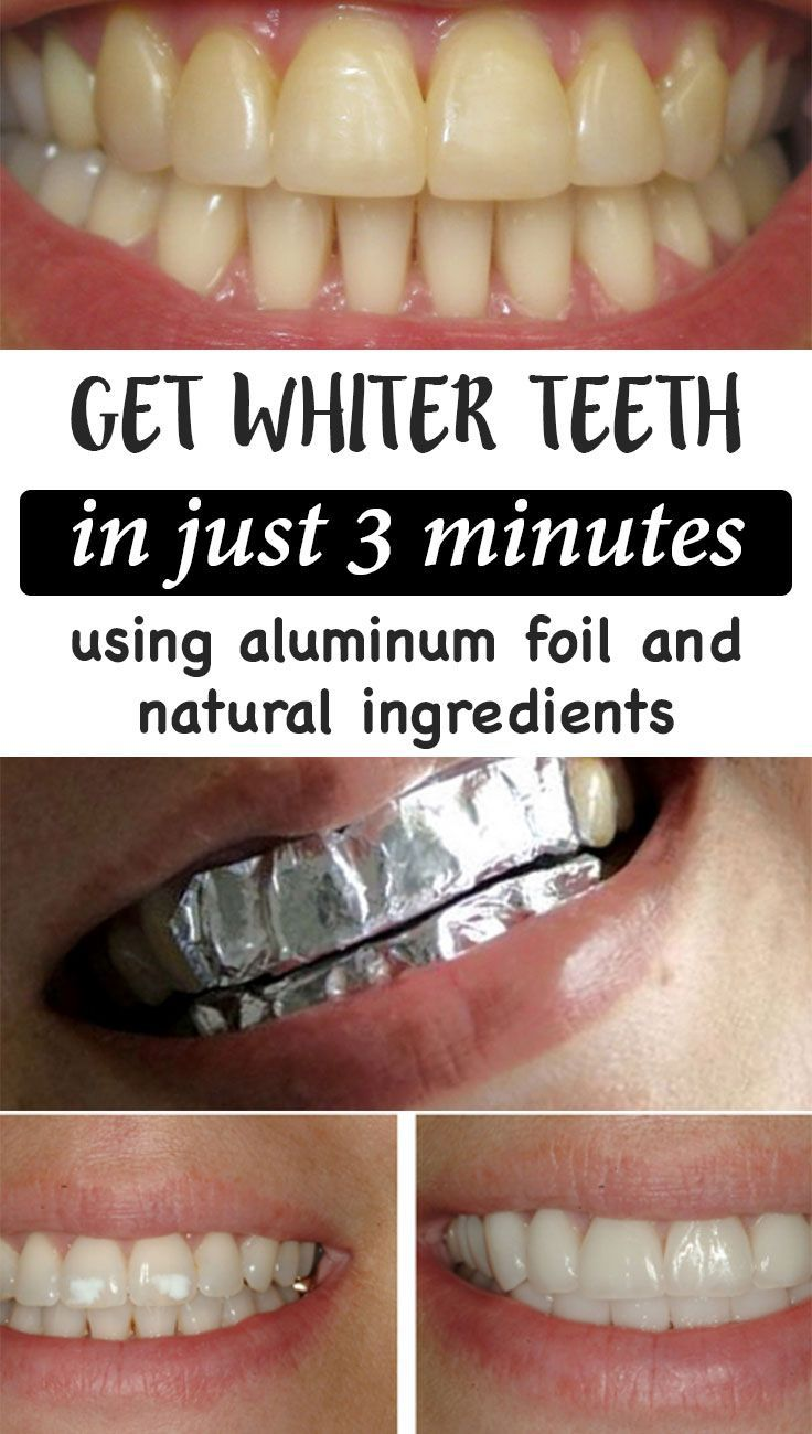 How To Get White Teeth Overnight Naturally