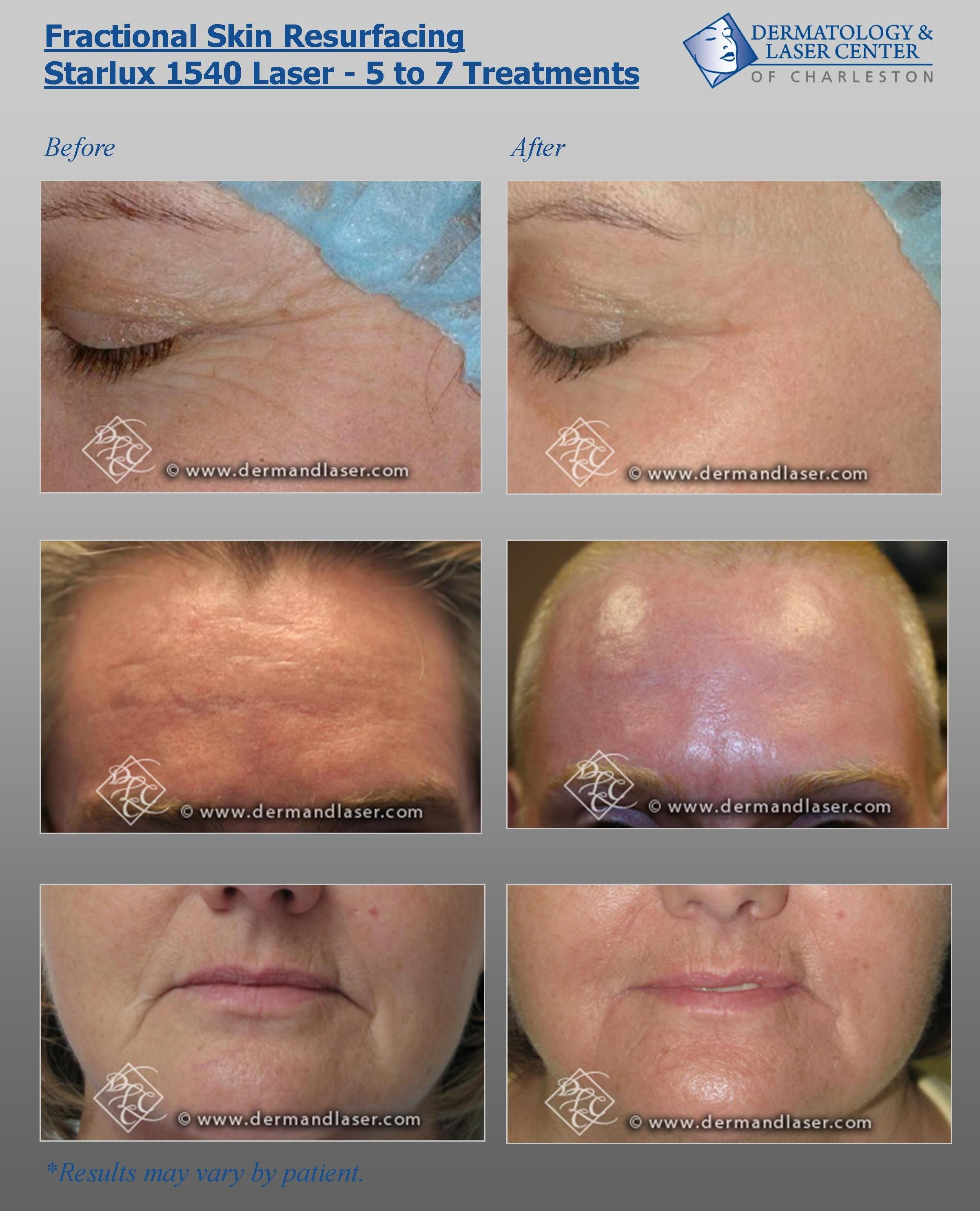 Fractional Skin Resurfacing with the Starlux 1540 Laser