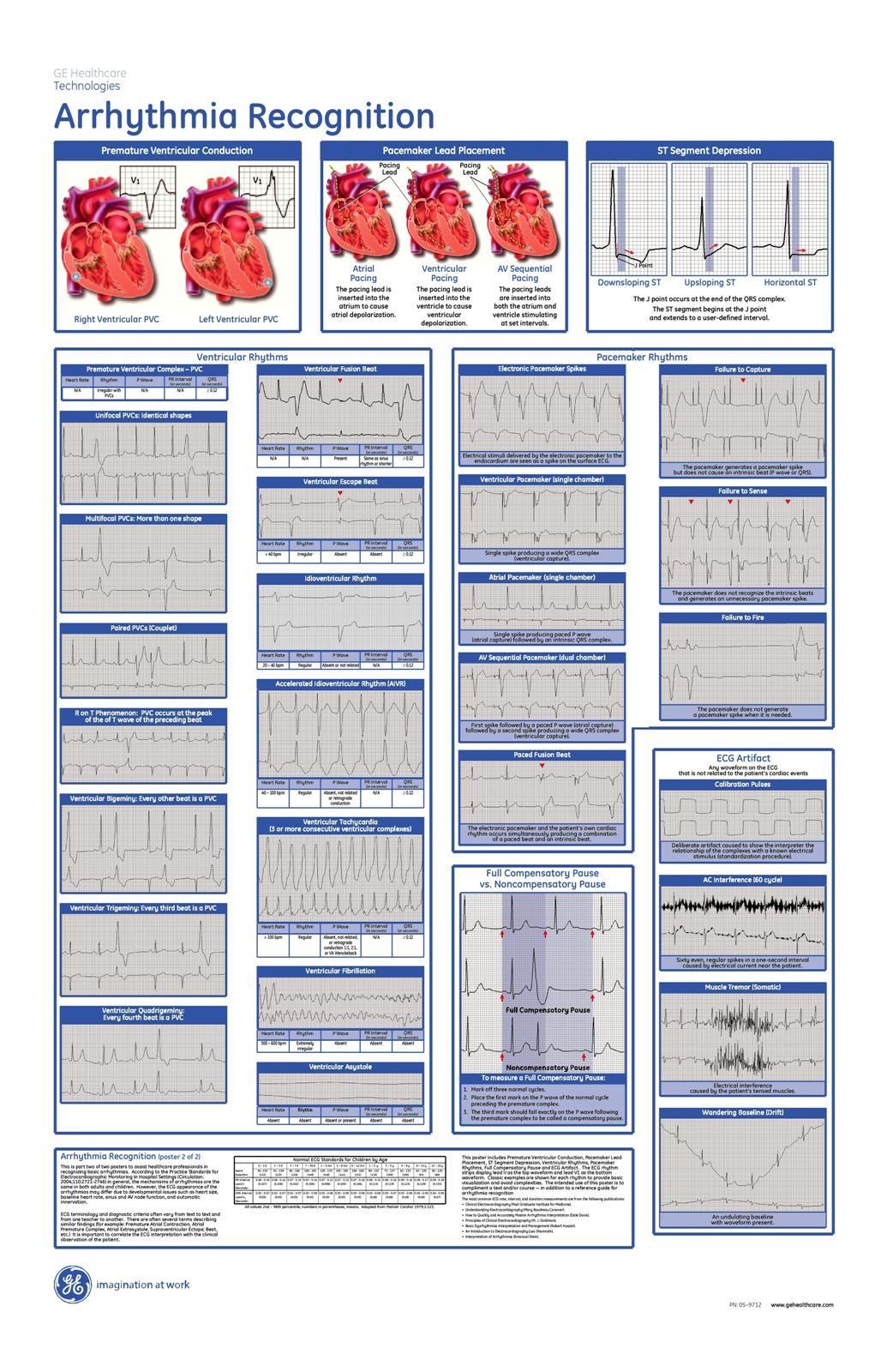 Arrhythmia Recognition Poster