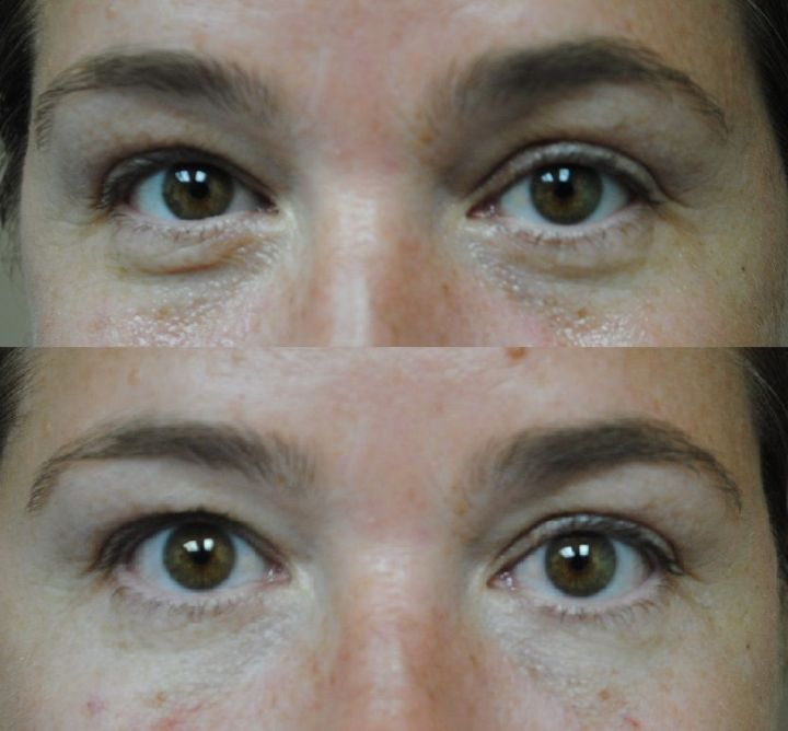 Belotero Is A Dermal Filler For Tear Trough Rejuvenation And Improving The Appearance Of Dark Under Eye Circles
