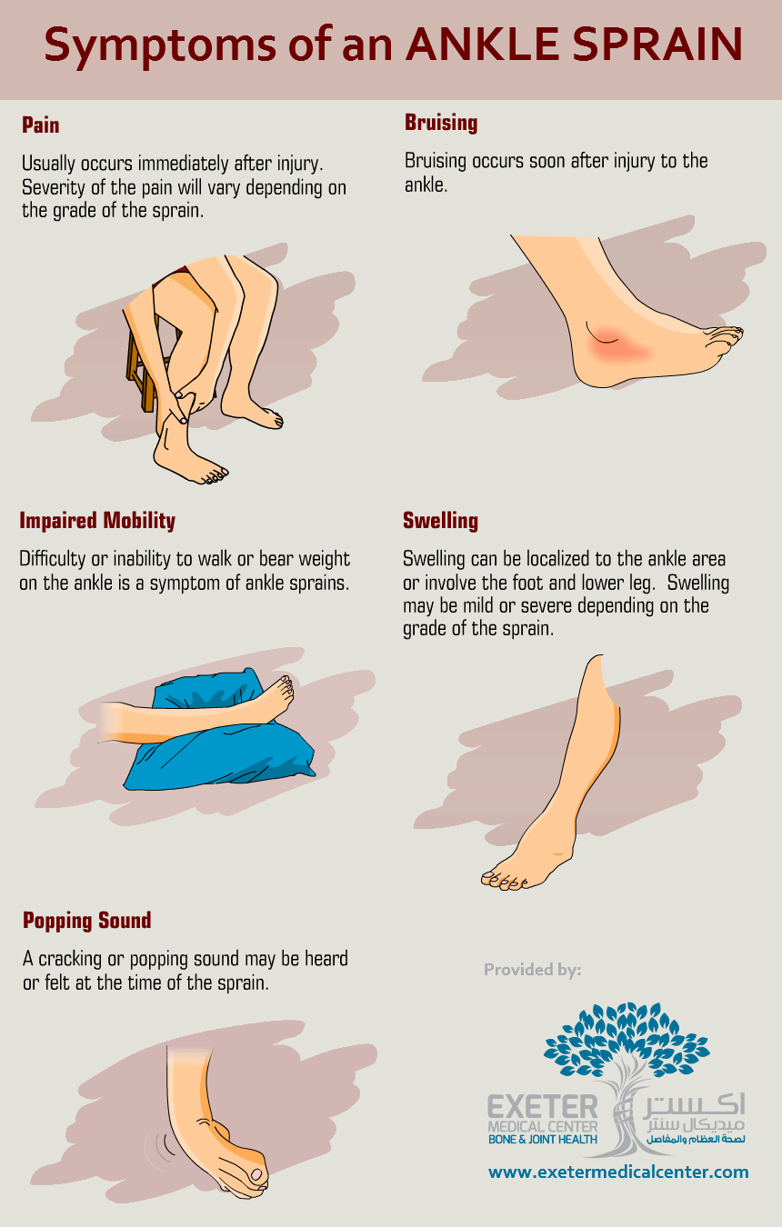 Ankle sprains are a common injury that occur from over