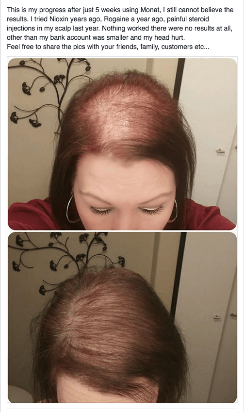 This is makes me want to cry. Real Results with Monat 5