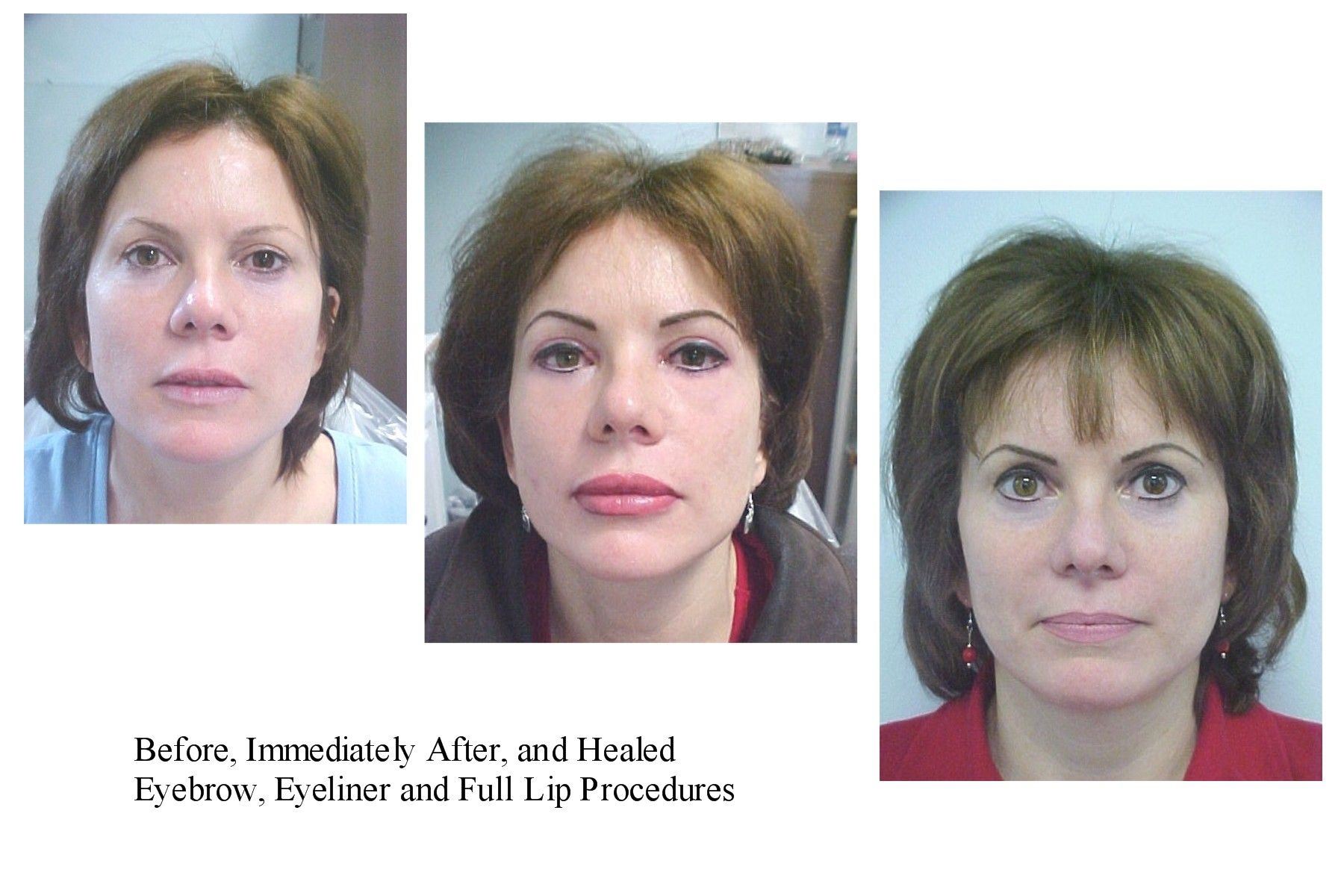 Bad Permanent Makeup Permanent Makeup Before