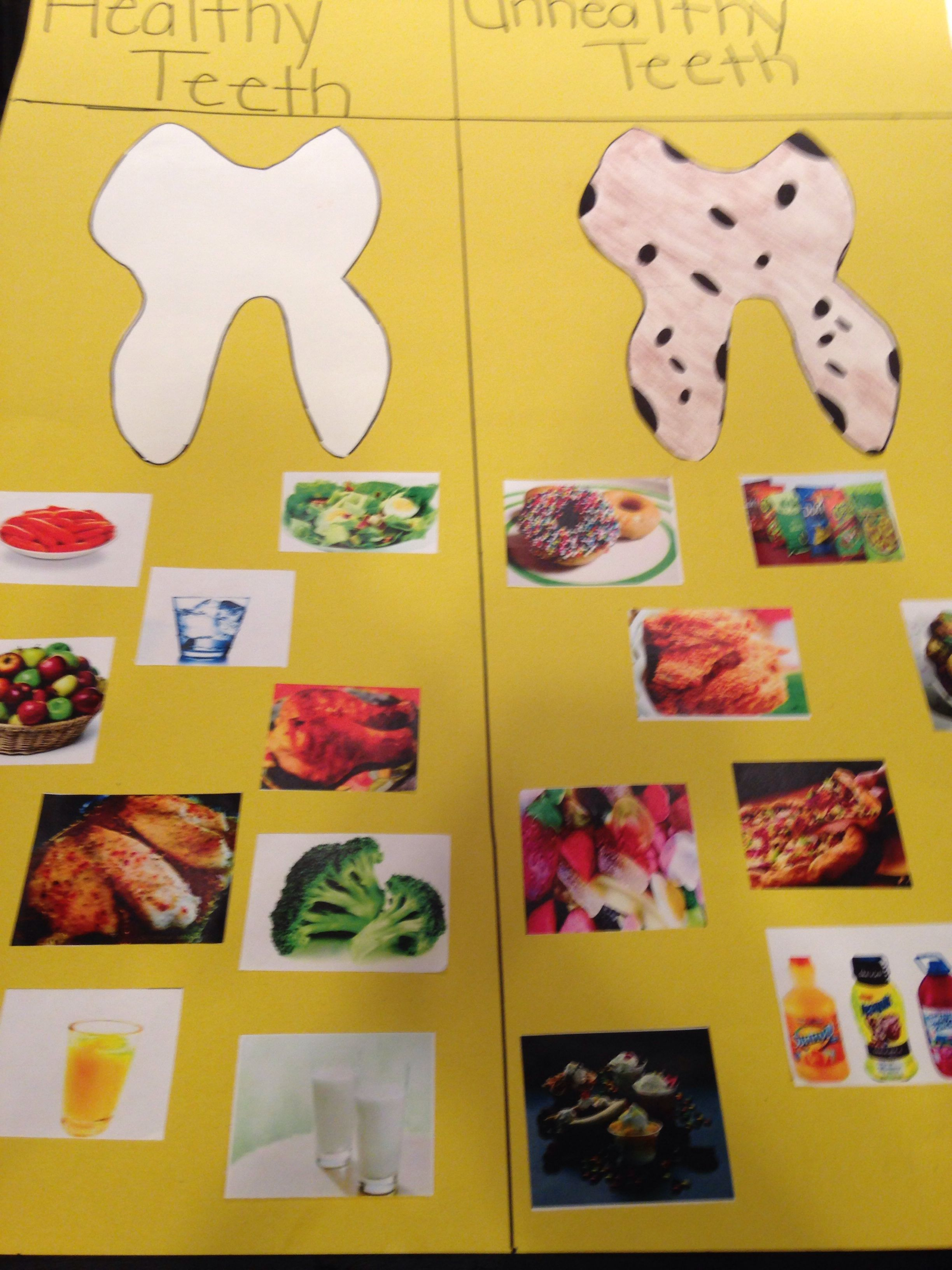 Healthy Teeth Versus Unhealthy Teeth I Made This Poster Board For Preschool Children You Can