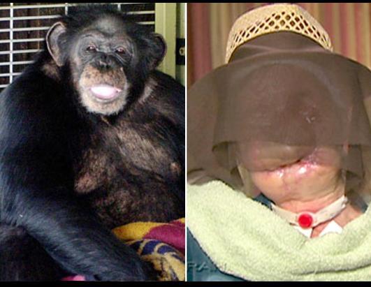 Photos When Animals Attack Photos Abc News