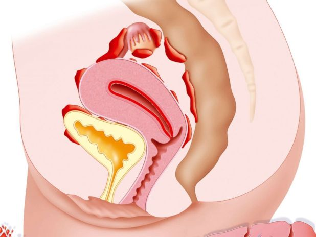 PHOTO: Endometriosis is the presence of the uterine lining outside the uterine cavity.