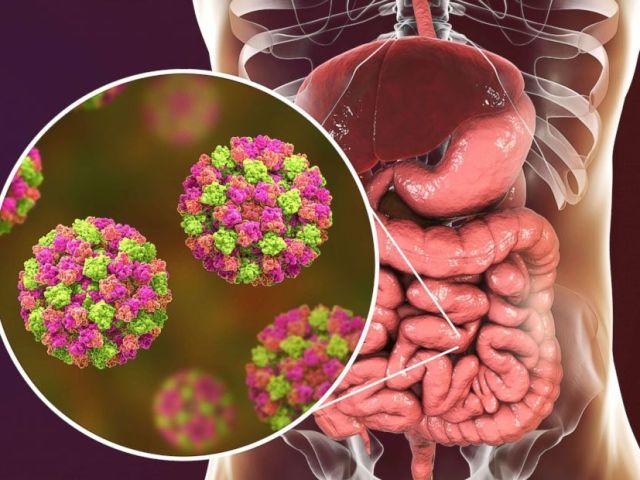 PHOTO: Norovirus sufferers may experience symptoms like abdominal pain, nausea, vomiting and diarrhea.