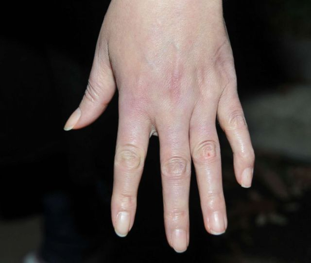 Photo Sandra Melgars Hands Were A Subject Of Debate If She Was Guilty