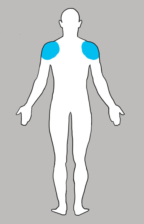 3. Плечи боль, люди, тело