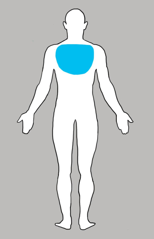 4. Боль в верхнем отделе спины боль, люди, тело