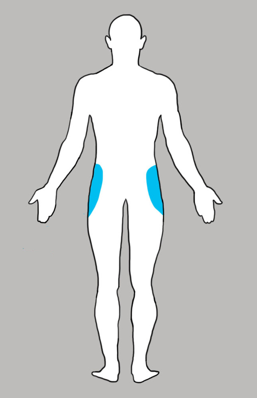 8. Бедра боль, люди, тело