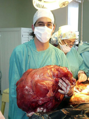 Tumor tinha 23 kg