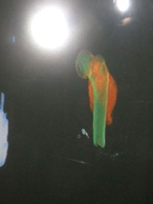 Osso humano é detectado pelo raio-x dos Correios no Rio Grande do Sul (Foto: Divulgação/Polícia Civil)