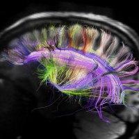 Imagem 3D revela a organização cerebral