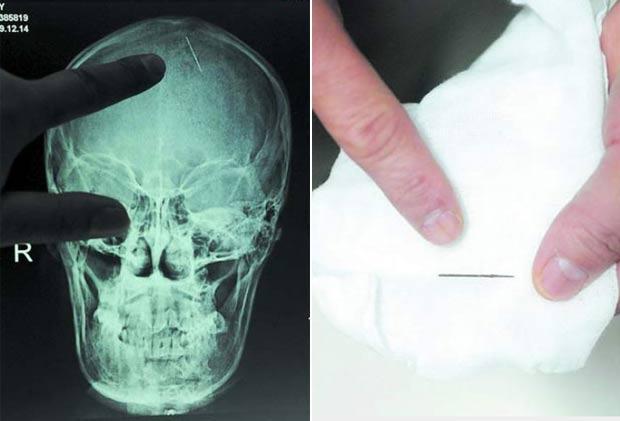 Imagem de raio-X mostra uma agulha de 2,5 centímetros que ficou por 20 encravada na cabeça da chinesa Zhou Chaozheng, que mora na província de Hunan. Ela passou por uma cirurgia em outubro de 2010 após começar a sentir dores de cabeça depois de dar à luz. (Foto: Barcroft Media/Getty Images)