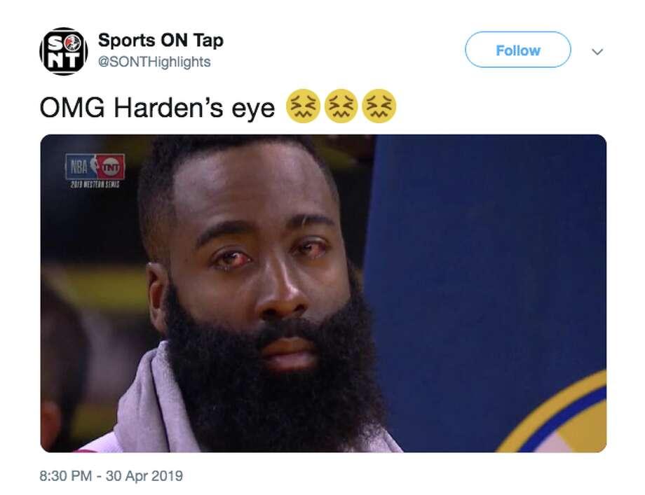 James Harden S Extremely Bloodshot Eyes Terrify The Internet