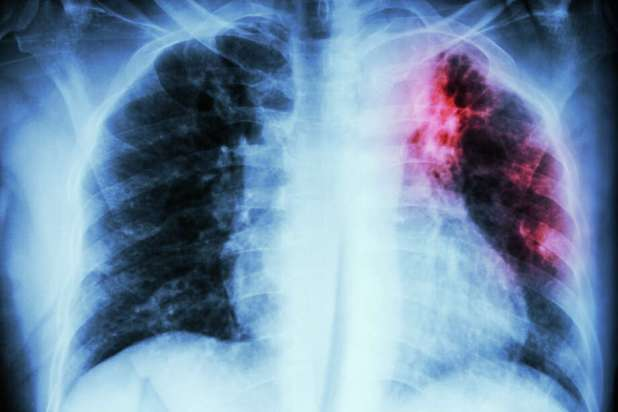 Treatment is sometimes closely monitored to ensure the tuberculosis bacteria do not become drug resistant. Photo: Stockdevil/Getty Images/iStockphoto