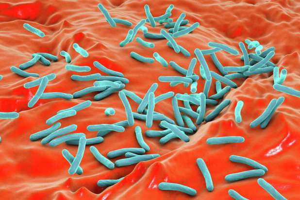Patients can have a latent tuberculosis infection, with germs in their bodies but no symptoms. These patients are not contagious unless they develop an active infection. Photo: KATERYNA KON/SCIENCE PHOTO LIBRARY/Getty Images/Science Photo Library RF